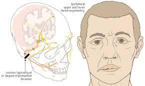 saraf wajah