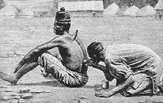 Terapi bekam basah menngunakan tanduk pada zaman dahulu.