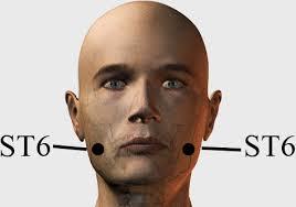 titik terapi bekam di wajah
