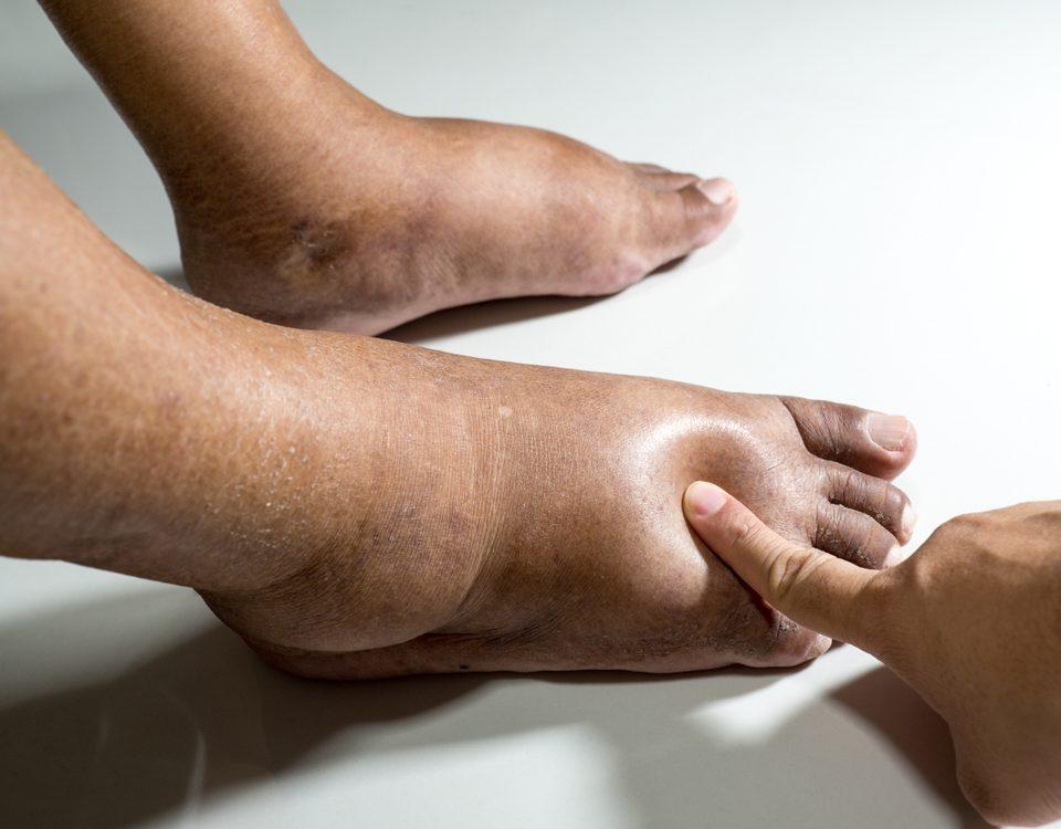 kaki bengkak pasca stroke